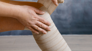 Compression garments and bandages for lymphoedema